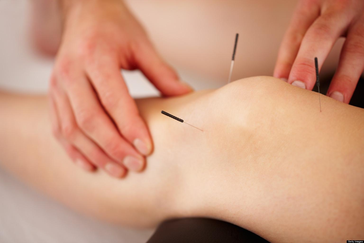 Acupunctuur_Bai_Hui_Schijndel_Nederland_2